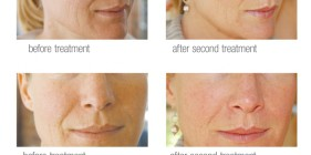 microneedling_before_after